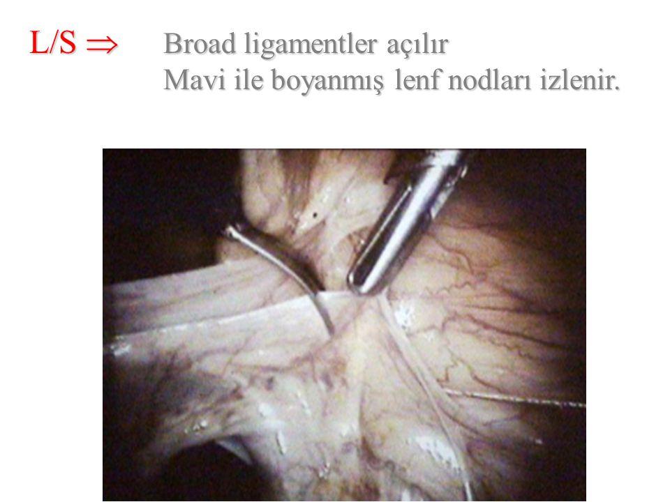 L/S  Broad ligamentler açılır Mavi ile boyanmış lenf nodları izlenir.