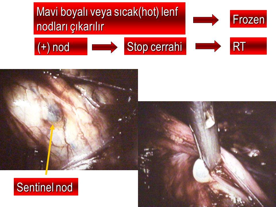 Mavi boyalı veya sıcak(hot) lenf nodları çıkarılır Frozen (+) nod Stop cerrahi RT Sentinel nod