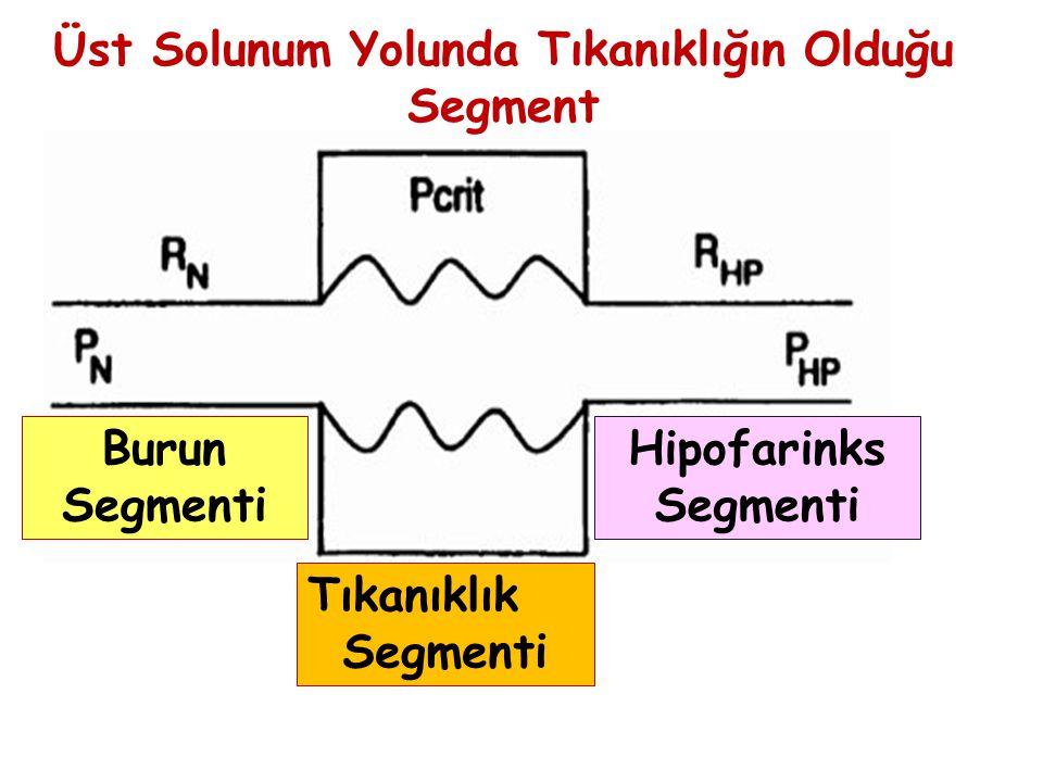Tıkanıklık Segmenti Hipofarinks Segmenti Burun Segmenti Üst Solunum Yolunda Tıkanıklığın Olduğu Segment