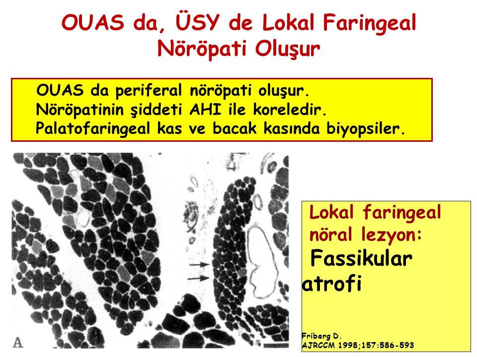 OUAS da, ÜSY de Lokal Faringeal Nöröpati Oluşur OUAS da periferal nöröpati oluşur. Nöröpatinin şiddeti AHI ile koreledir. Palatofaringeal kas ve bacak