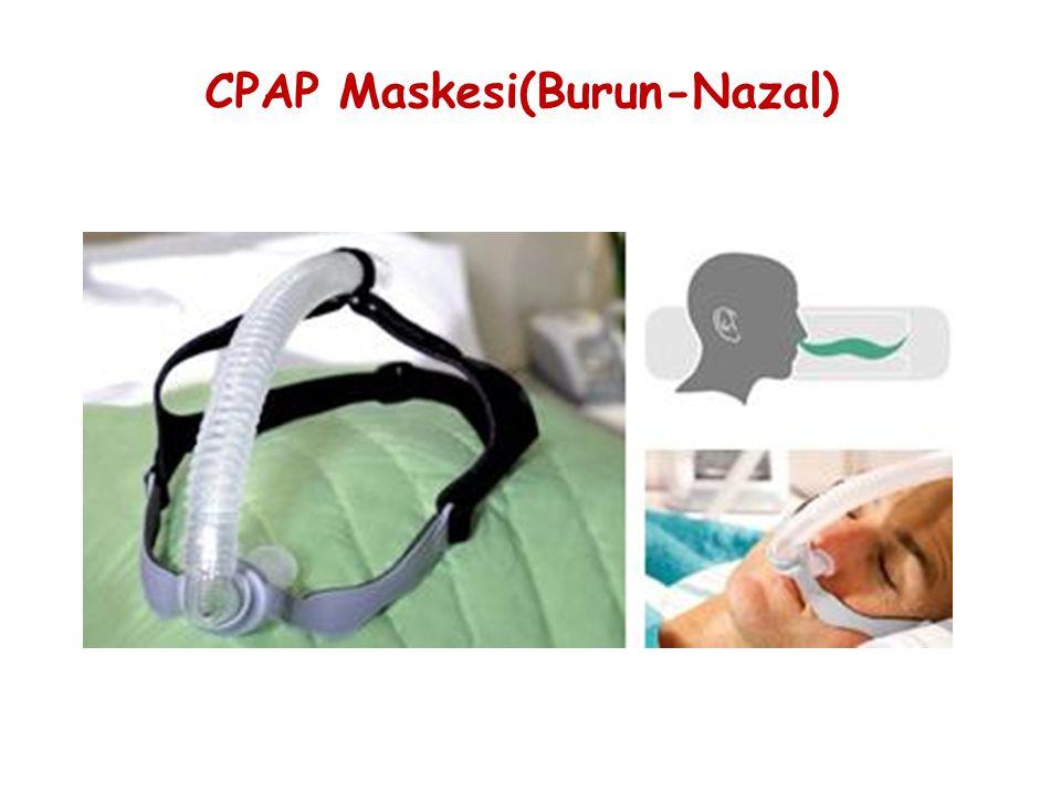 CPAP Maskesi(Burun-Nazal)
