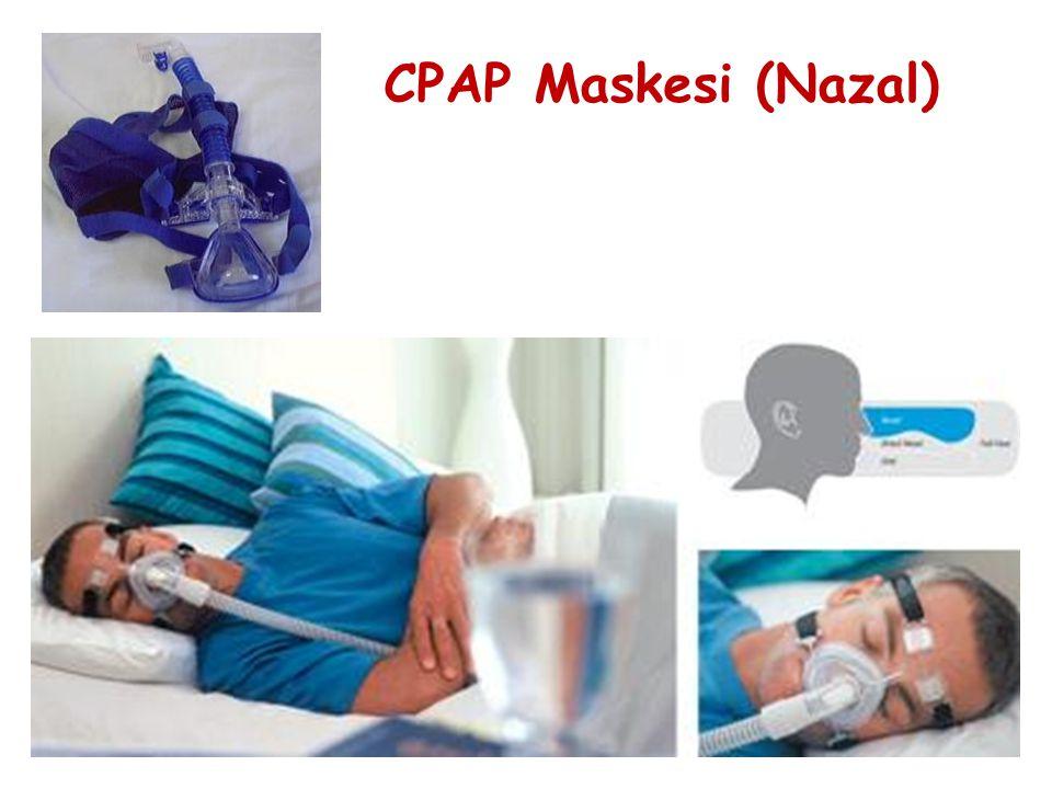 CPAP Maskesi (Nazal)