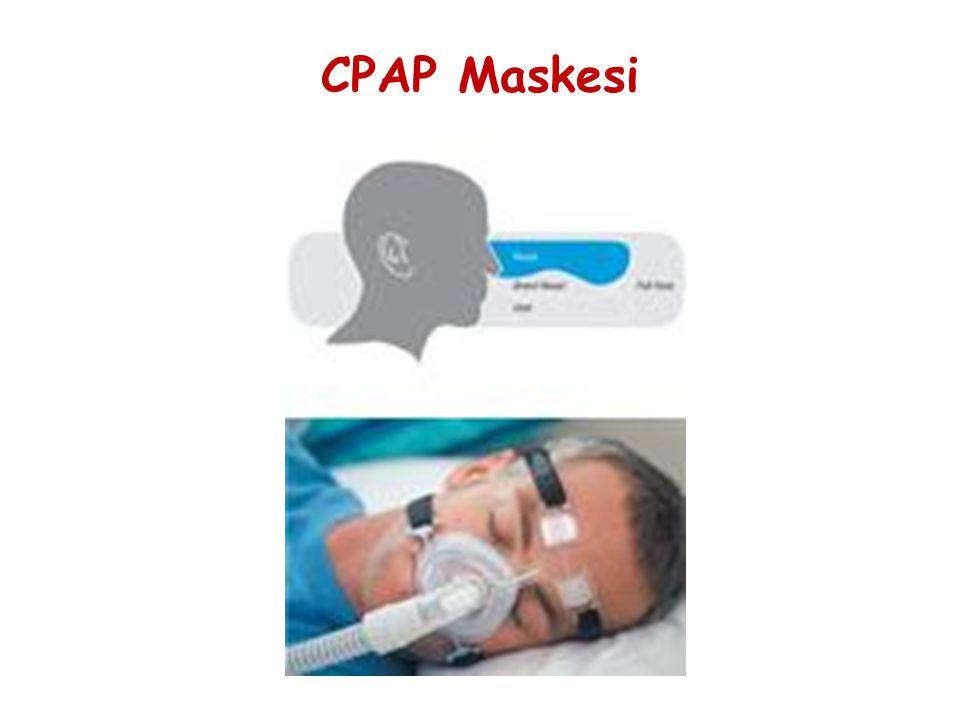 CPAP Maskesi