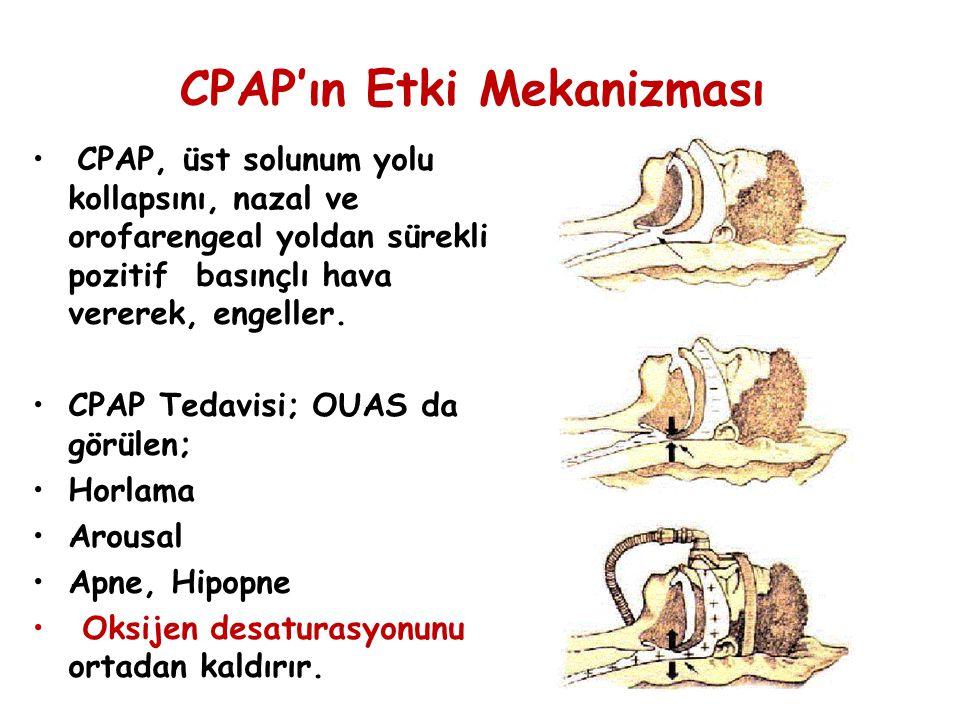 CPAP'ın Etki Mekanizması CPAP, üst solunum yolu kollapsını, nazal ve orofarengeal yoldan sürekli pozitif basınçlı hava vererek, engeller. CPAP Tedavis