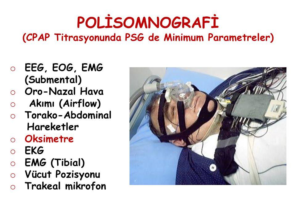 POLİSOMNOGRAFİ (CPAP Titrasyonunda PSG de Minimum Parametreler) o EEG, EOG, EMG (Submental) o Oro-Nazal Hava o Akımı (Airflow) o Torako-Abdominal Hare