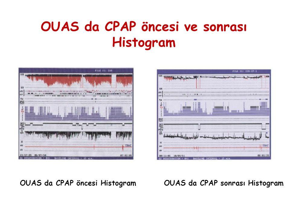 OUAS da CPAP öncesi HistogramOUAS da CPAP sonrası Histogram OUAS da CPAP öncesi ve sonrası Histogram