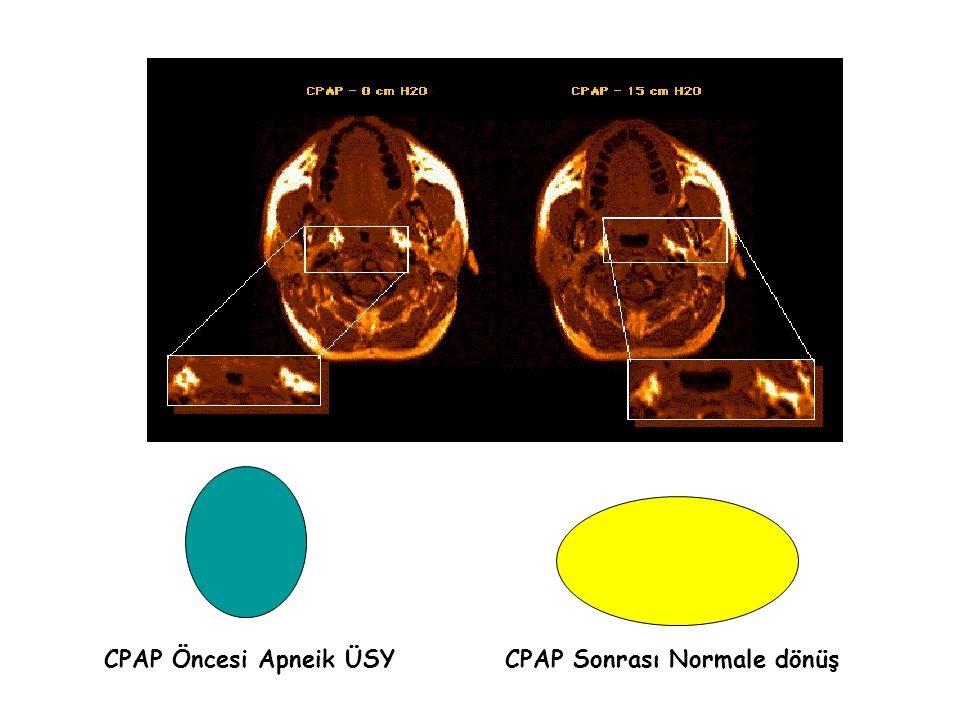CPAP Öncesi Apneik ÜSYCPAP Sonrası Normale dönüş