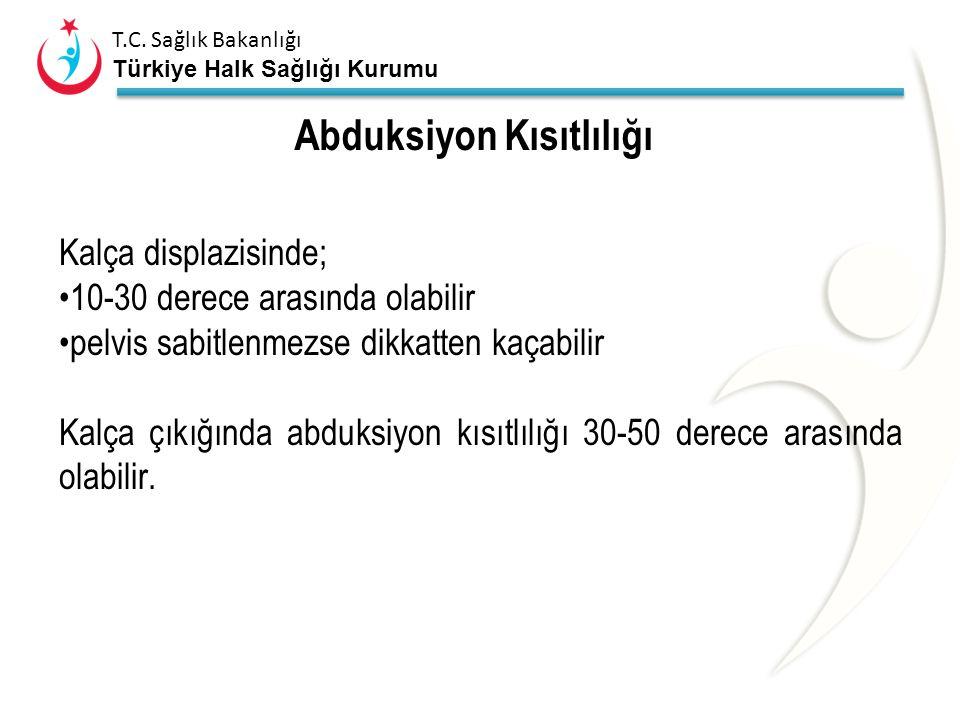 T.C. Sağlık Bakanlığı Türkiye Halk Sağlığı Kurumu Abduksiyon kısıtlılığı Normal bebeklerde % 2-4,5 Makat gelişte insidansı yüksek