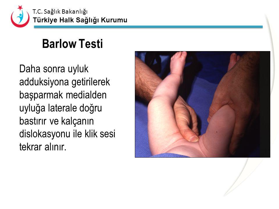 T.C. Sağlık Bakanlığı Türkiye Halk Sağlığı Kurumu Ortolani testi ORTOLANİ TESTİ MUTLAKA TEK TARAFLI YAPILIR