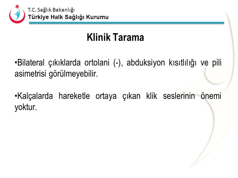 T.C. Sağlık Bakanlığı Türkiye Halk Sağlığı Kurumu Klinik Tarama Ortolani ve Barlow testleri; Spesifisite %100 Sensitivite düşük Yalancı (+) sonuç: aşı