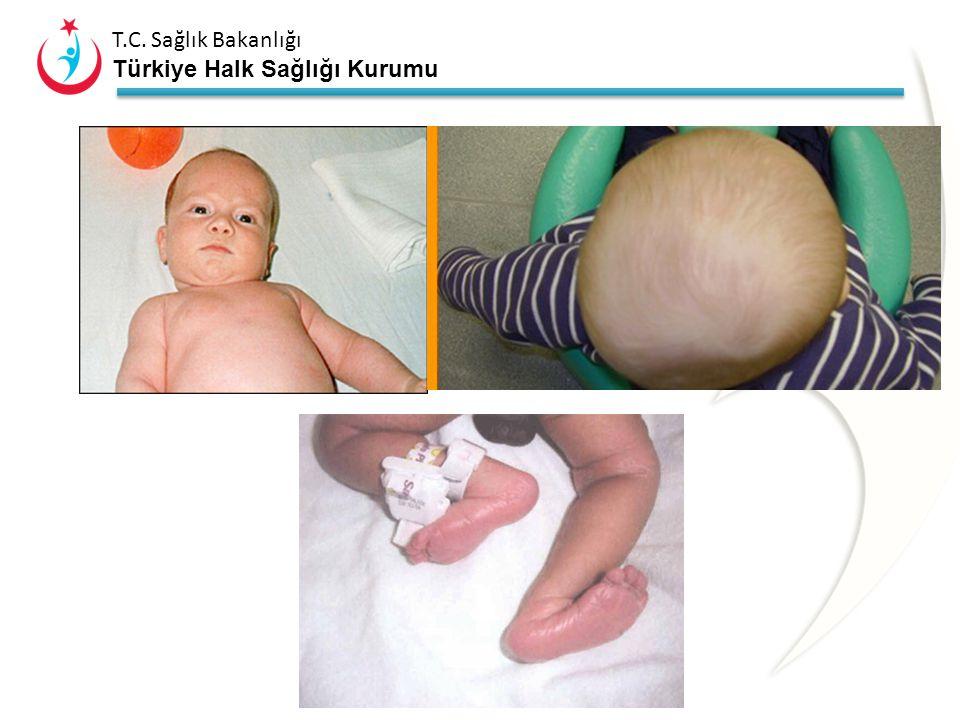T.C. Sağlık Bakanlığı Türkiye Halk Sağlığı Kurumu Kalça Dışı Gözleme Dayalı Bulgular Tortikollis Plajiosefali Skolyoz Pelvik oblisite Dizlerde şekil b