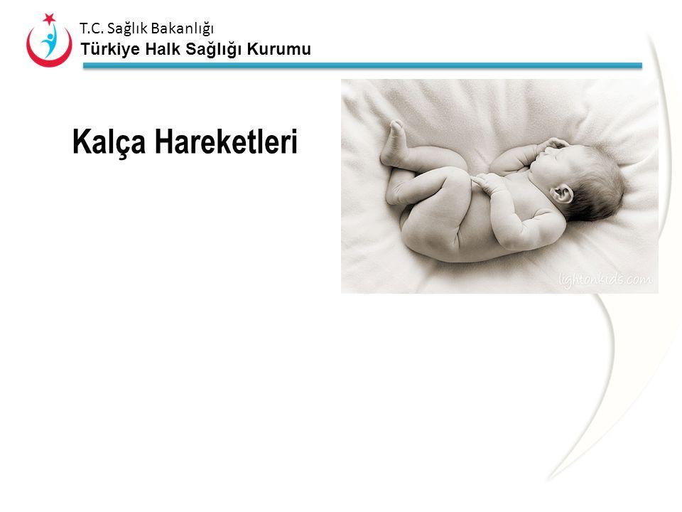 T.C. Sağlık Bakanlığı Türkiye Halk Sağlığı Kurumu KALÇA BULGULARI