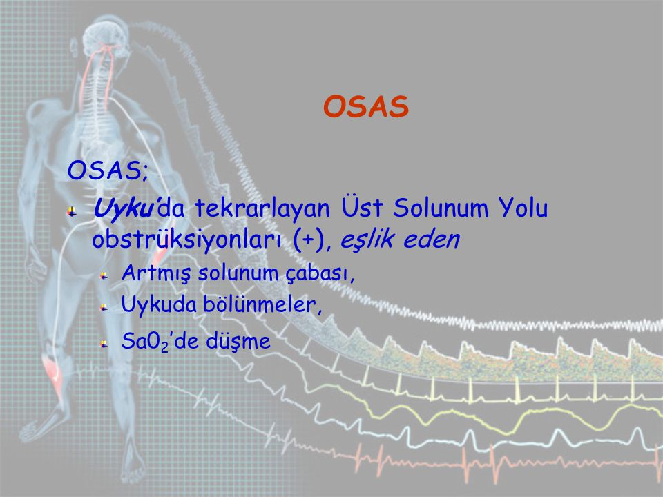 Bradiaritmi OSAS'lı hastaların; %18-47'sinde bradiaritmi (Sinüs bradikardisi) % 20'sinde kalp blokları (AV Blok) Son organ hasarı açısından sonuçları önemli AHI ile yakından ilişkili Barorefleksi bozulmuş HT, KKY li REM uykusu sırasında Morbid obezlerde daha CPAP'ın 24-48.