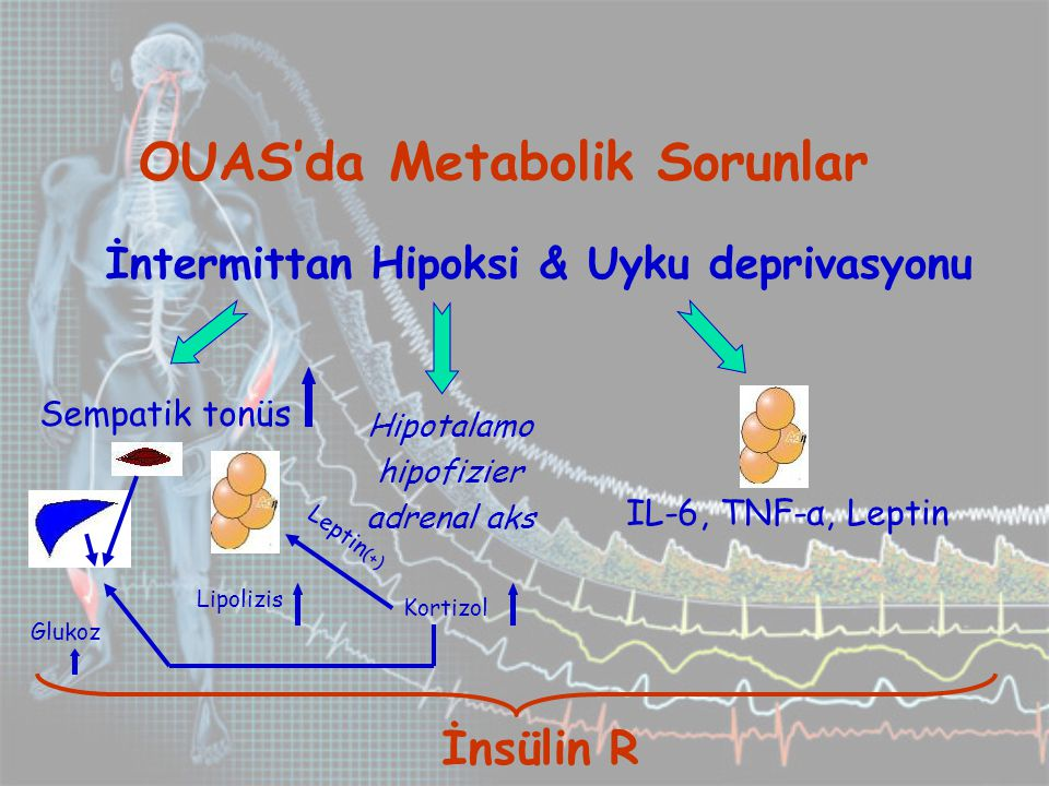 İntermittan Hipoksi & Uyku deprivasyonu OUAS'da Metabolik Sorunlar Sempatik tonüs Hipotalamo hipofizier adrenal aks İnsülin R Glukoz Lipolizis Kortizol Leptin (+) IL-6, TNF-α, Leptin