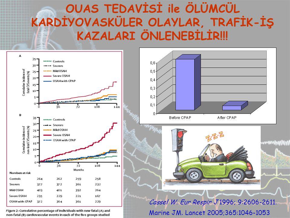 OUAS TEDAVİSİ ile ÖLÜMCÜL KARDİYOVASKÜLER OLAYLAR, TRAFİK-İŞ KAZALARI ÖNLENEBİLİR!!.