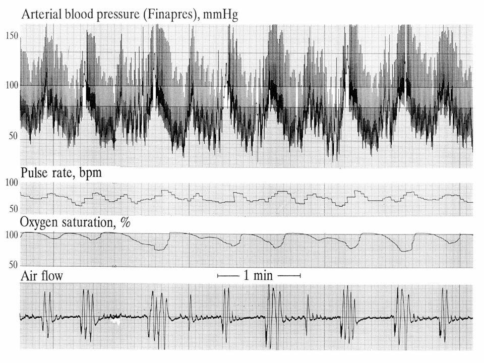 Uyanıkken normotansif olan OSAS'lı bir hastanın TA 'i uyurken apneler sırasında 250/130 mmHg ya kadar yükselir.