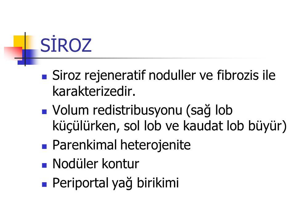 SİROZ Siroz rejeneratif noduller ve fibrozis ile karakterizedir.