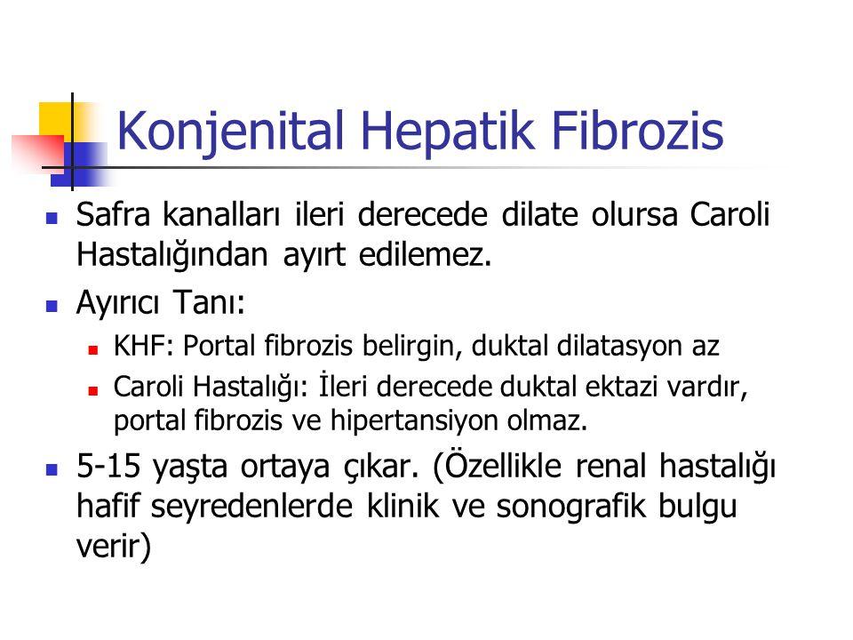 Konjenital Hepatik Fibrozis Safra kanalları ileri derecede dilate olursa Caroli Hastalığından ayırt edilemez.