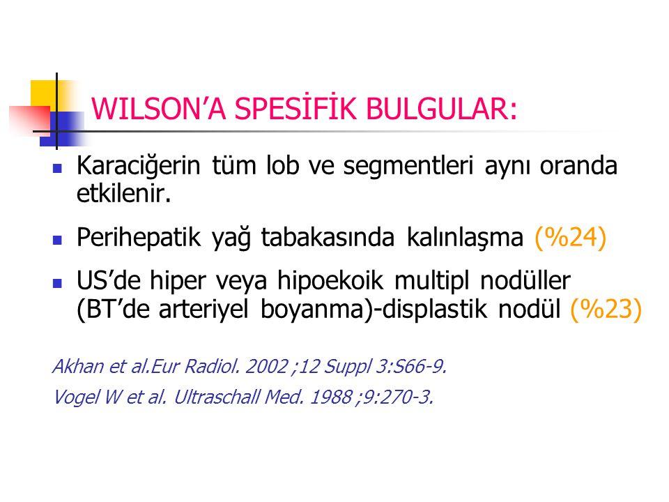 WILSON'A SPESİFİK BULGULAR: Karaciğerin tüm lob ve segmentleri aynı oranda etkilenir.