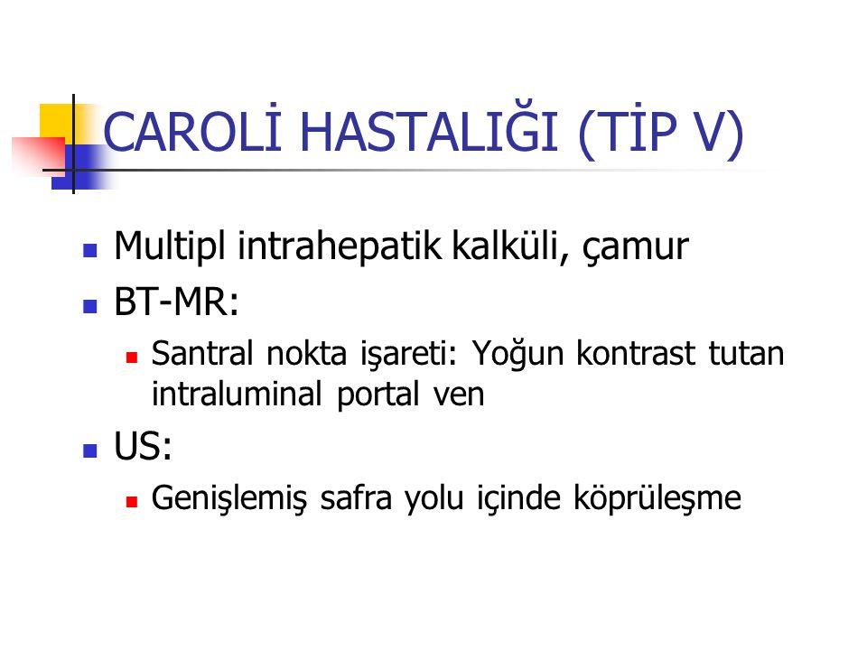 CAROLİ HASTALIĞI (TİP V) Multipl intrahepatik kalküli, çamur BT-MR: Santral nokta işareti: Yoğun kontrast tutan intraluminal portal ven US: Genişlemiş safra yolu içinde köprüleşme