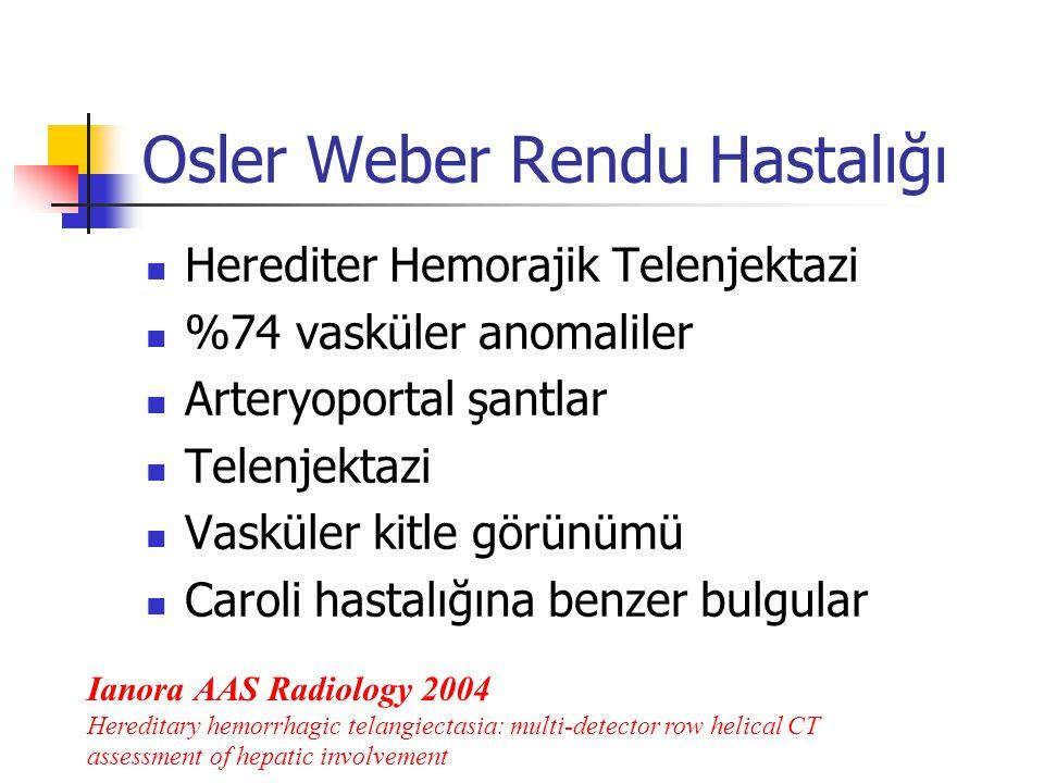 Osler Weber Rendu Hastalığı Herediter Hemorajik Telenjektazi %74 vasküler anomaliler Arteryoportal şantlar Telenjektazi Vasküler kitle görünümü Caroli hastalığına benzer bulgular Ianora AAS Radiology 2004 Hereditary hemorrhagic telangiectasia: multi-detector row helical CT assessment of hepatic involvement