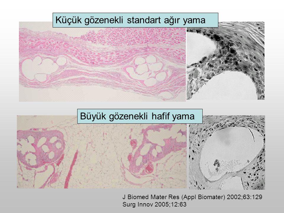 J Biomed Mater Res (Appl Biomater) 2002;63:129 Surg Innov 2005;12:63 Küçük gözenekli standart ağır yama Büyük gözenekli hafif yama