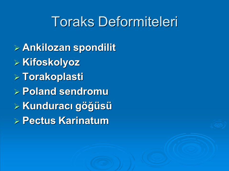Toraks Deformiteleri  Ankilozan spondilit  Kifoskolyoz  Torakoplasti  Poland sendromu  Kunduracı göğüsü  Pectus Karinatum