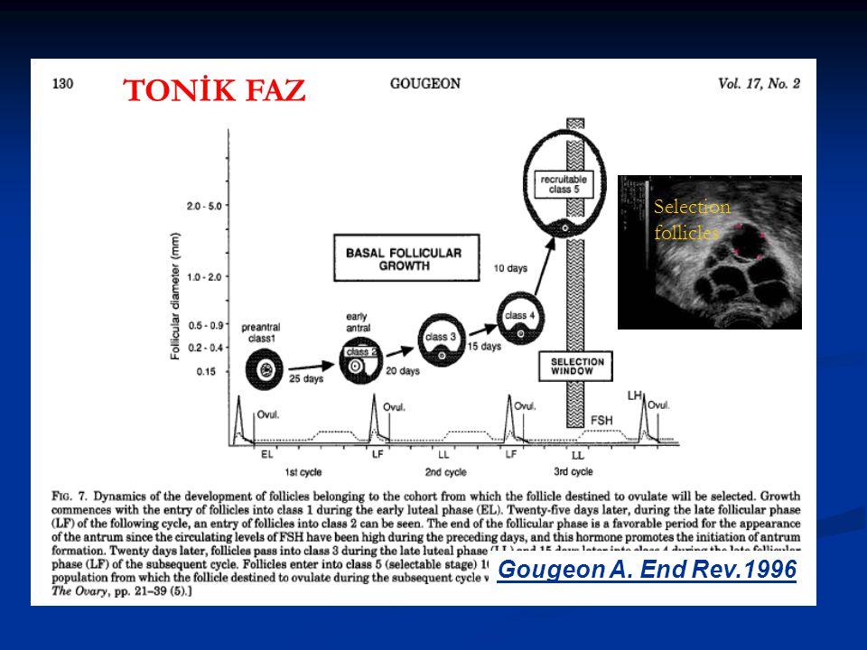Retrospektif Retrospektif 134 vaka 134 vaka GRUP 1: (77 vaka) Agonist short flare-up protokol, Buserelin sc GRUP 1: (77 vaka) Agonist short flare-up protokol, Buserelin sc GRUP 2: (57 vaka) Antagonist protokol, Cetrorelix 0,25 mg sc GRUP 2: (57 vaka) Antagonist protokol, Cetrorelix 0,25 mg sc Mohammed,Fertil Steril 2005