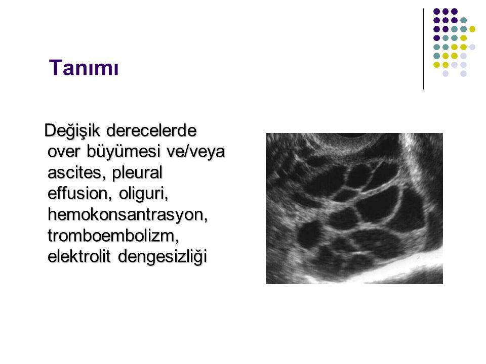 Tanımı Değişik derecelerde over büyümesi ve/veya ascites, pleural effusion, oliguri, hemokonsantrasyon, tromboembolizm, elektrolit dengesizliği Değişi