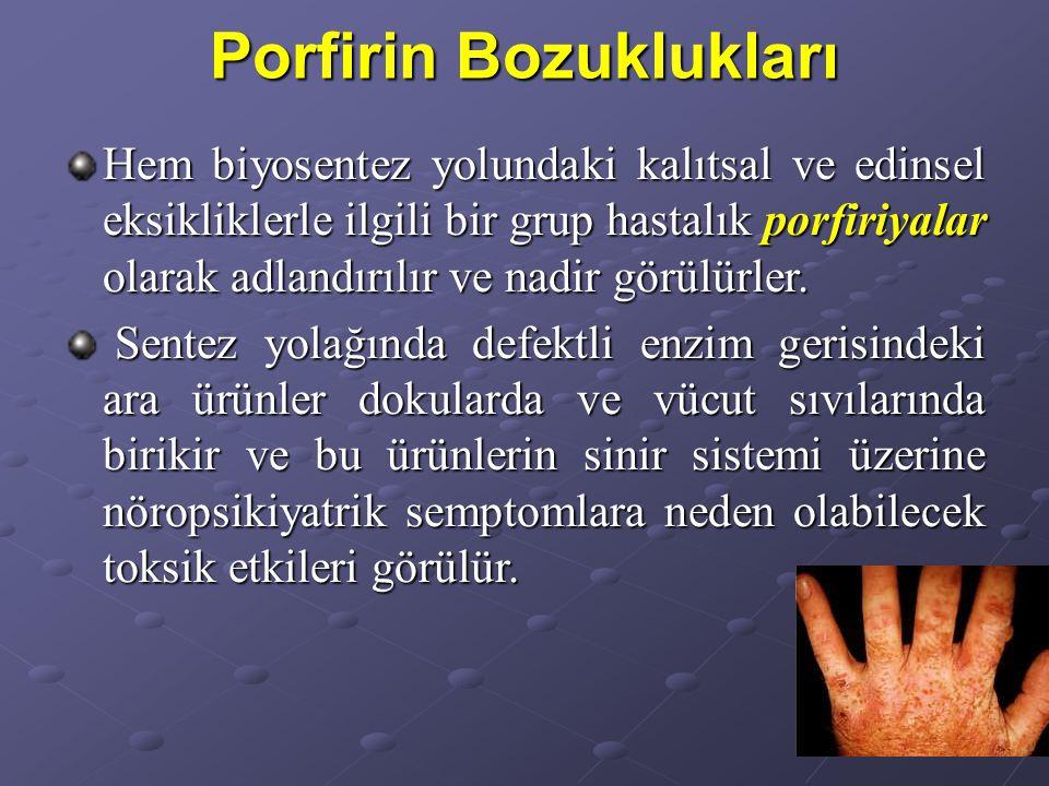 Porfirin Bozuklukları Hem biyosentez yolundaki kalıtsal ve edinsel eksikliklerle ilgili bir grup hastalık porfiriyalar olarak adlandırılır ve nadir görülürler.