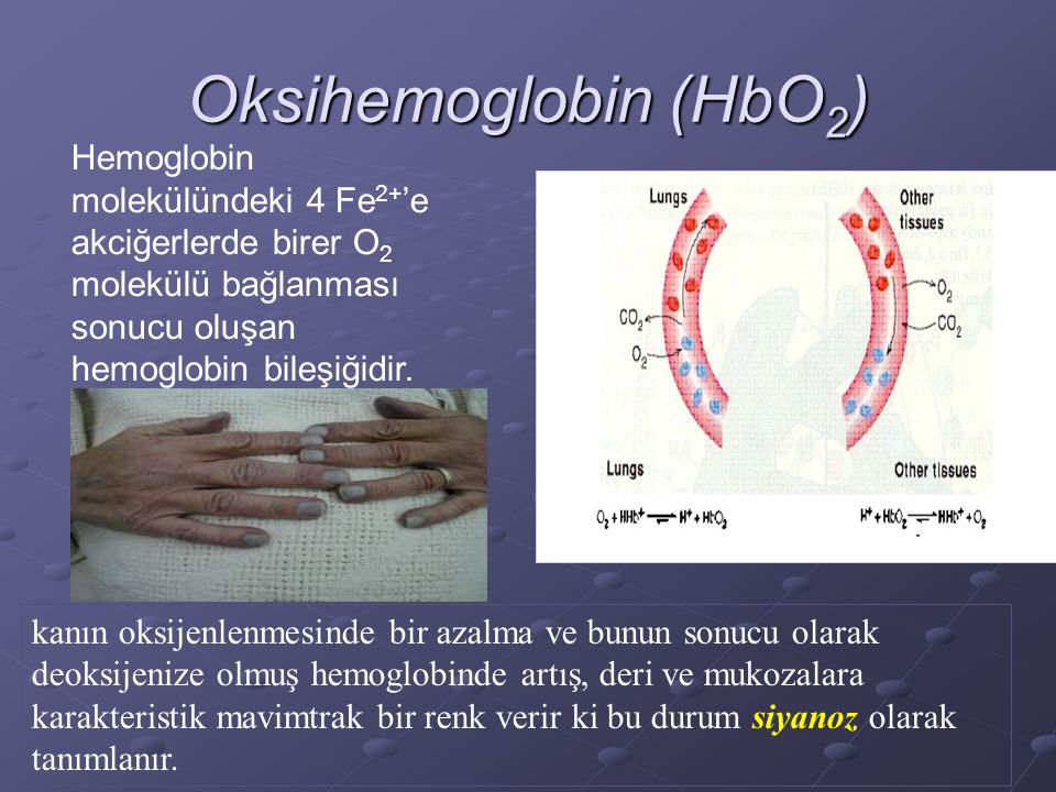Oksihemoglobin (HbO 2 ) Hemoglobin molekülündeki 4 Fe 2+ 'e akciğerlerde birer O 2 molekülü bağlanması sonucu oluşan hemoglobin bileşiğidir.