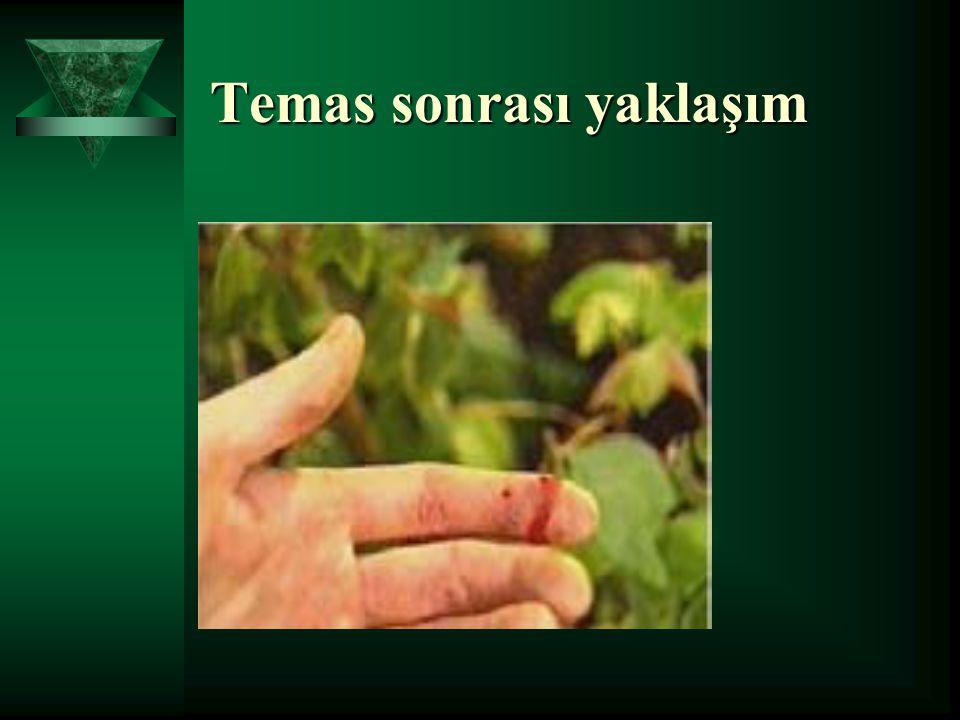 HCV'DEN KORUNMA  Uygun cerrahi teknik  Standart önlemler (eldiveni,maske vb)  El hijyeni  Cerrahi malzeme sterilizasyonu ve dezenfeksiyonu  Yüksek riskli temas sonrası uygun tedavi