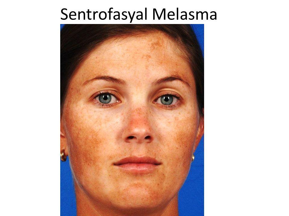 Sentrofasyal Melasma