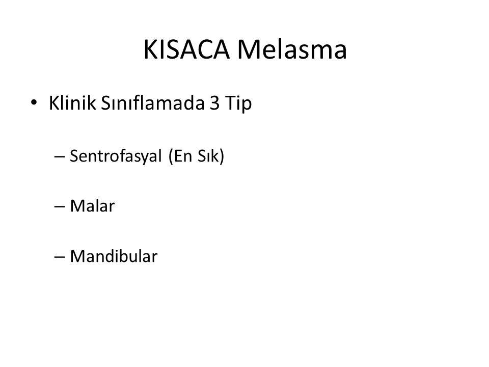 KISACA Melasma Klinik Sınıflamada 3 Tip – Sentrofasyal (En Sık) – Malar – Mandibular
