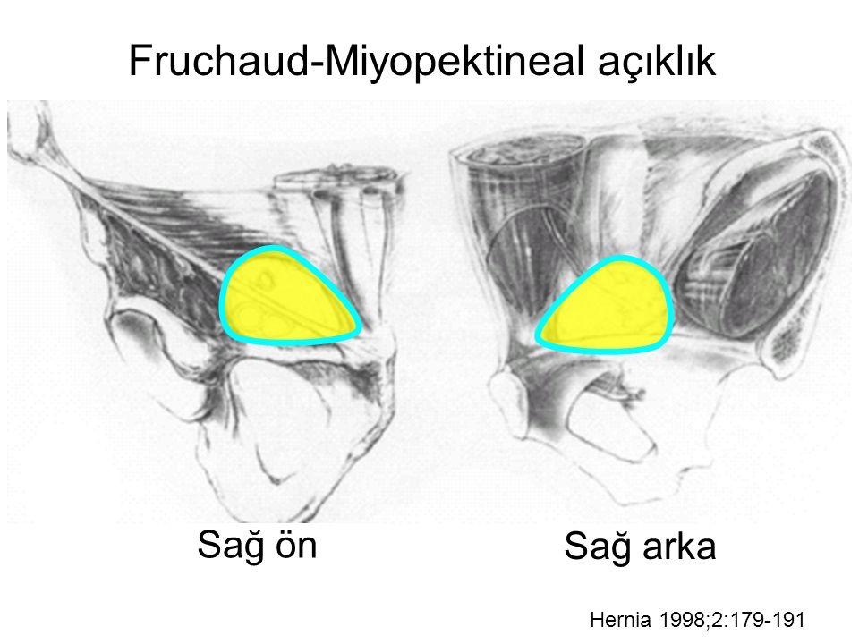 Br J Surg 2000;87:860-867 34 çalışma, 6804 hasta Çoğu TAPP onarım x dikişli/yamalı onarım anlamlılık Ameliyat süresiEvet (-) Ağrı derecesiEvet (+) İyileşme süresiEvet (+) YinelemeHayır