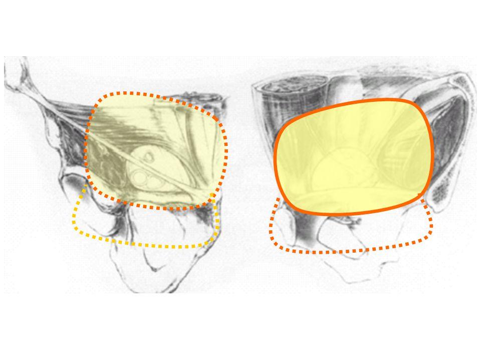 Surg Endosc 2005;19:188–199 34 çalışma 7223 hasta;TAPP/TEP x yamalı (23 çalışma 4550 hasta;TAPP/TEP x Lichtenstein) anlamlılık Ameliyat süresiEvet (-) Toplam kompl.Hayır ParesteziEvet (+) İyileşme süresiEvet (+) Kronik ağrıEvet (+) YinelemeEvet (-)