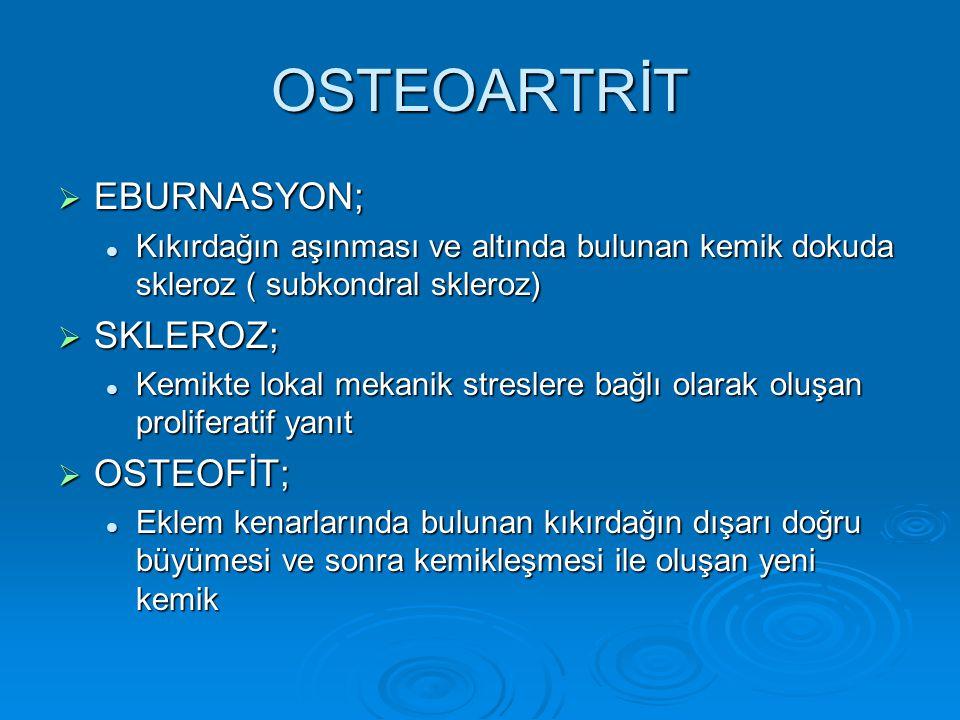 OSTEOARTRİT  EBURNASYON; Kıkırdağın aşınması ve altında bulunan kemik dokuda skleroz ( subkondral skleroz) Kıkırdağın aşınması ve altında bulunan kem