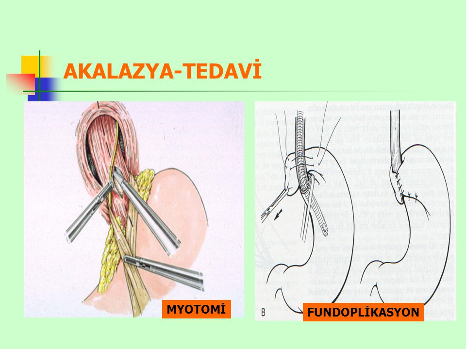 AKALAZYA-TEDAVİ FUNDOPLİKASYON MYOTOMİ