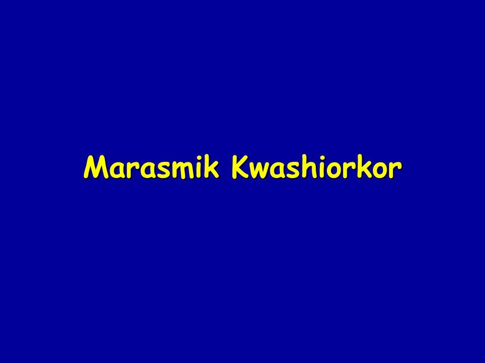 Marasmik Kwashiorkor