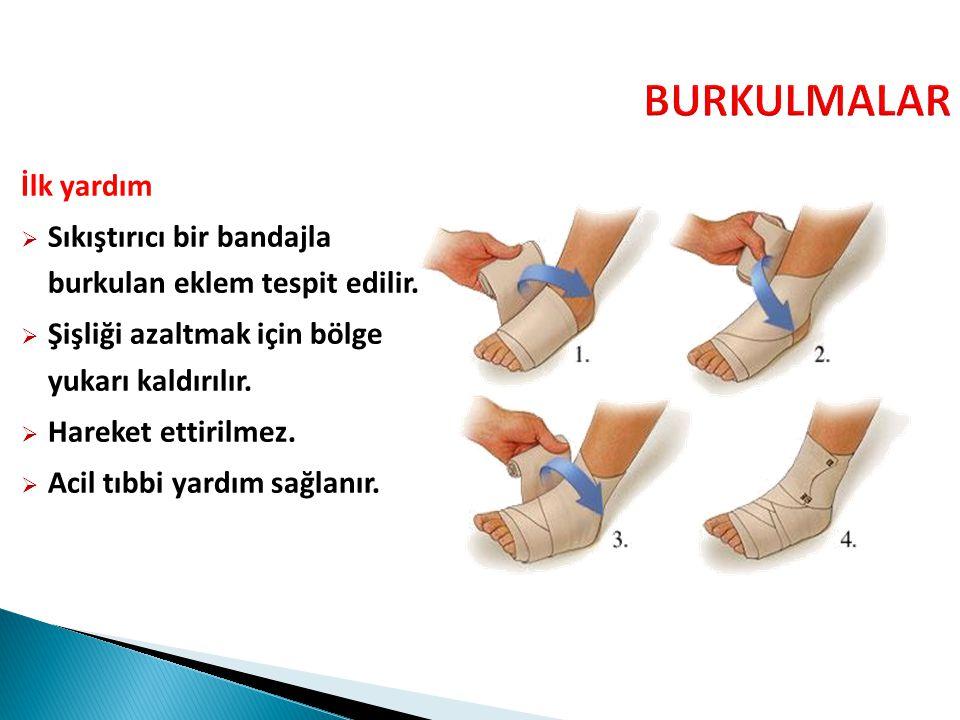 İlk yardım  Sıkıştırıcı bir bandajla burkulan eklem tespit edilir.