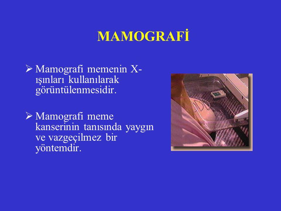 MAMOGRAFİ  Mamografi memenin X- ışınları kullanılarak görüntülenmesidir.  Mamografi meme kanserinin tanısında yaygın ve vazgeçilmez bir yöntemdir.