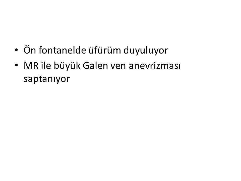 Ön fontanelde üfürüm duyuluyor MR ile büyük Galen ven anevrizması saptanıyor