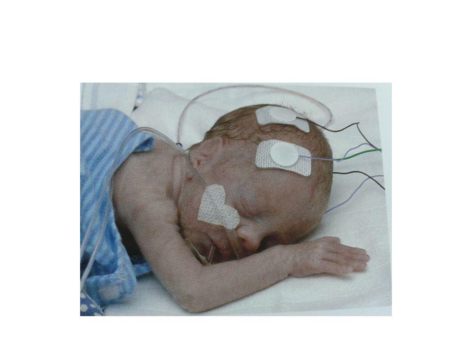 Olgu- 5 Erkek bebek 38.gebelik haftasında fetal bradikardi nedeniyle acil sezarye ile doğmuş.