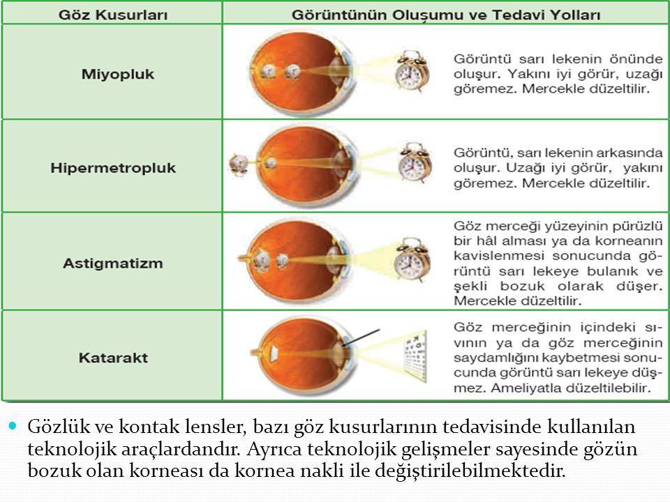 Gözlük ve kontak lensler, bazı göz kusurlarının tedavisinde kullanılan teknolojik araçlardandır.