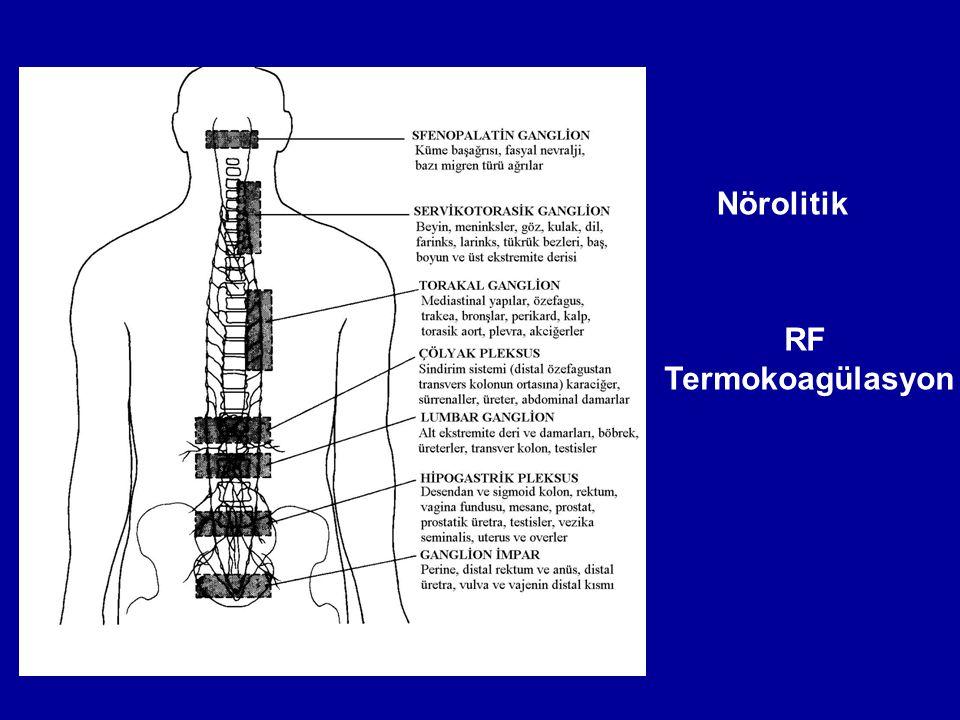 Nörolitik RF Termokoagülasyon