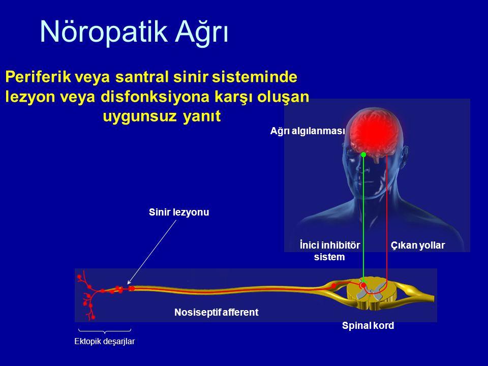 Nöropatik Ağrı Ektopik deşarjlar Sinir lezyonu Spinal kord Nosiseptif afferent İnici inhibitör sistem Çıkan yollar Ağrı algılanması Periferik veya san