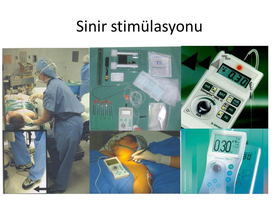 Sinir stimülasyonu