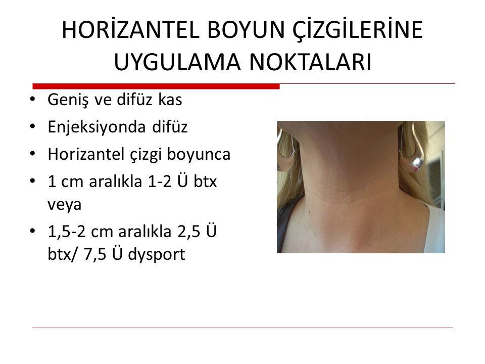 HORİZANTEL BOYUN ÇİZGİLERİNE UYGULAMA NOKTALARI Geniş ve difüz kas Enjeksiyonda difüz Horizantel çizgi boyunca 1 cm aralıkla 1-2 Ü btx veya 1,5-2 cm a
