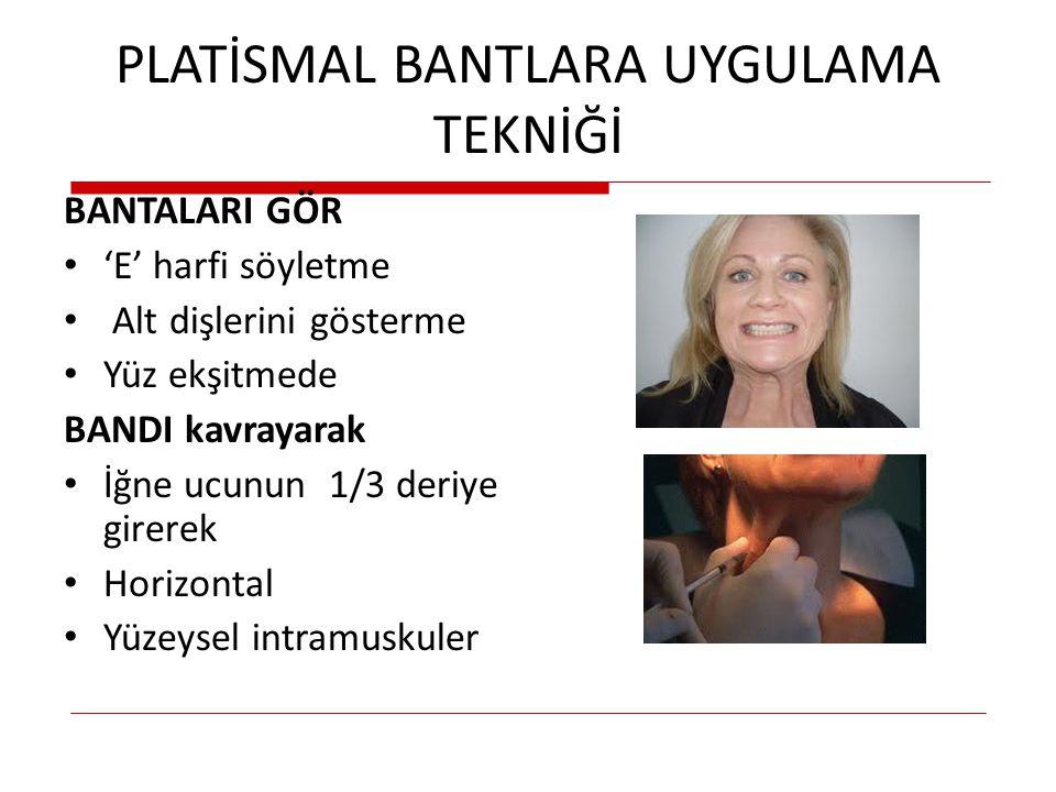 PLATİSMAL BANTLARA UYGULAMA TEKNİĞİ BANTALARI GÖR 'E' harfi söyletme Alt dişlerini gösterme Yüz ekşitmede BANDI kavrayarak İğne ucunun 1/3 deriye gire