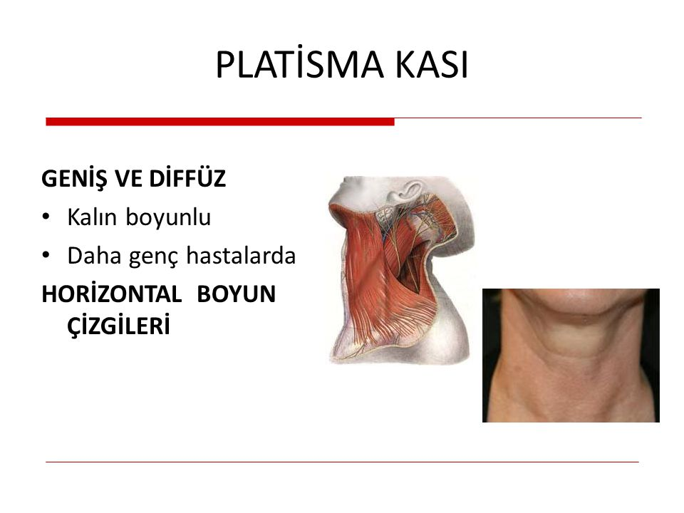 PLATİSMA KASI VERTİKAL İnce yapılı hastalarda 2-4 vertikal bant Kolayca kavranabilir PLATİSMA BANTLARI 'E' harfi söyletme Alt dişlerini gösterme Yüz ekşitmede